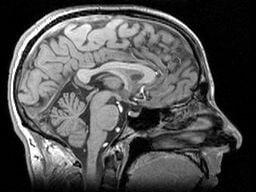 Parkinsons brain hyperbaric studies