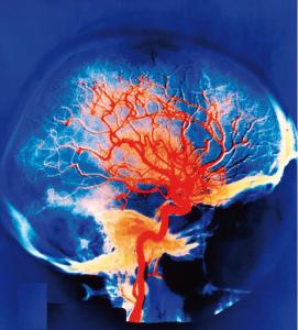 brain scan hyperbaric oxygen studies hbot research